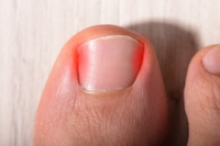 What Can Cause an Ingrown Toenail to Develop?