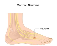 Factors That Cause Morton's Neuromas